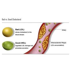 why is cholesterol good and bad